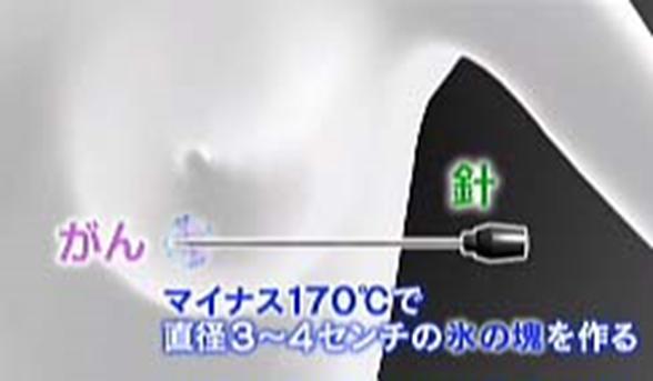 13-1.fw