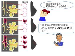 石灰化説明-3