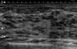 乳腺の良性疾患2.fw