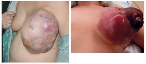 乳腺の良性疾患12.fw