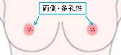 乳腺の良性疾患7.fw