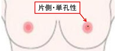 乳腺の良性疾患8.fw