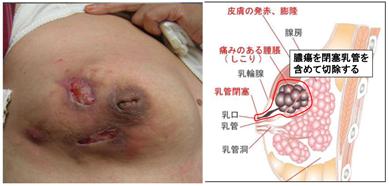 乳腺の良性疾患5.fw