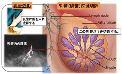 乳腺の良性疾患10.fw