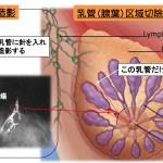 乳管区域切除