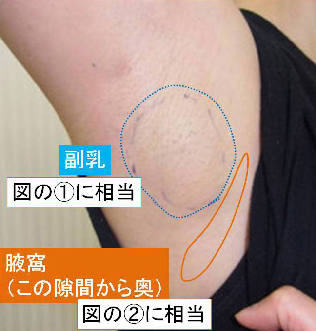 腋窩の写真