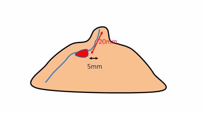 乳頭からの距離の図