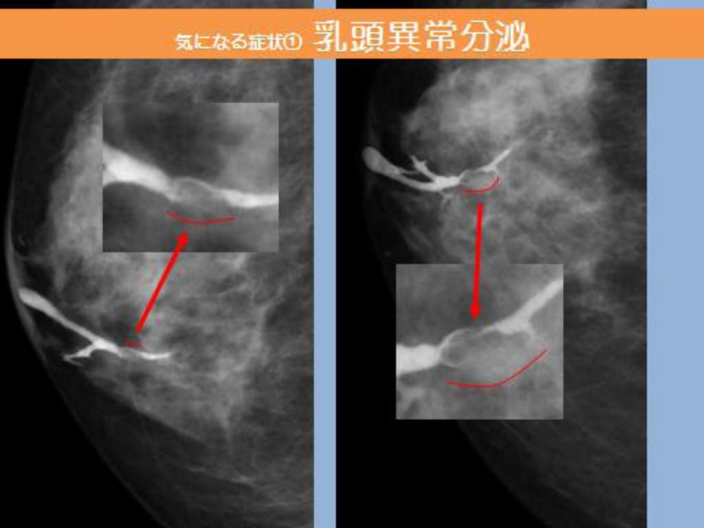 乳管造影2