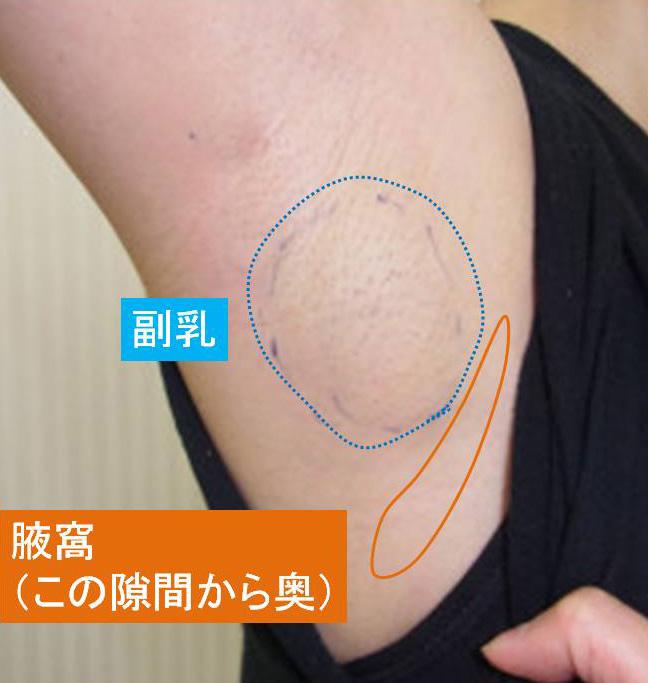 腋窩と副乳