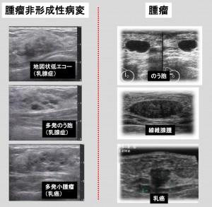 腫瘤と腫瘤非形成性病変-4