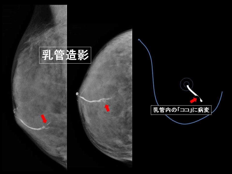 乳管造影写真