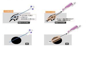 針生検とマンモトーム生検