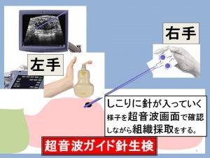 超音波ガイド(手)