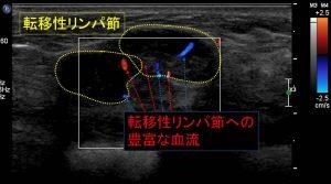 リンパ節転移血流(解説付き)