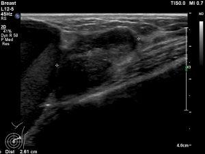 嚢胞内腫瘍浸潤