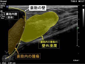 嚢胞内腫瘍浸潤(解説付き)