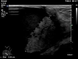 嚢胞内腫瘍